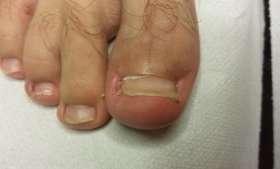 wrastający paznokieć przed i po