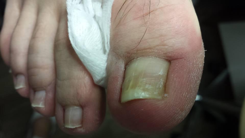 zmiany na paznokciu