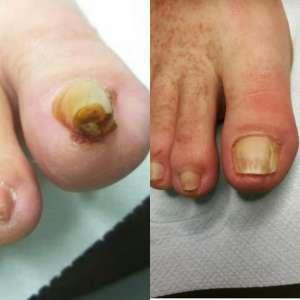 nieleczony wkręcający paznokieć kontra paznokieć po leczeniu