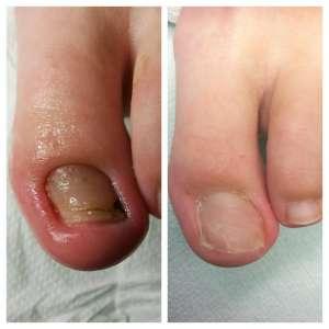 wkręcający paznokieć przed i po