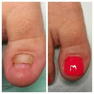 efekt rekonstrukcji płytki paznokciowej