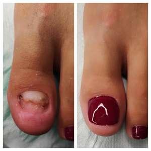 przed rekonstrukcją płytki paznokciowej oraz po
