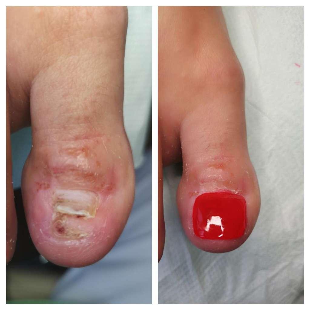 proces rekonstrukcji płytki paznokciowej