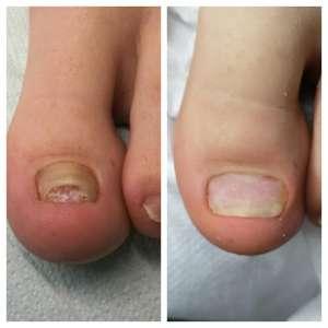 proces leczenia wkręcającego paznokcia