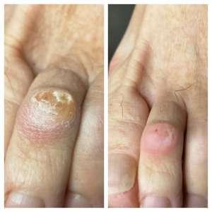 usuwanie odcisku na palcu u stopy