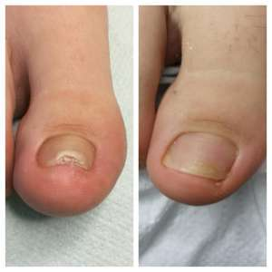 wkręcający paznokieć przed i po leczeniu