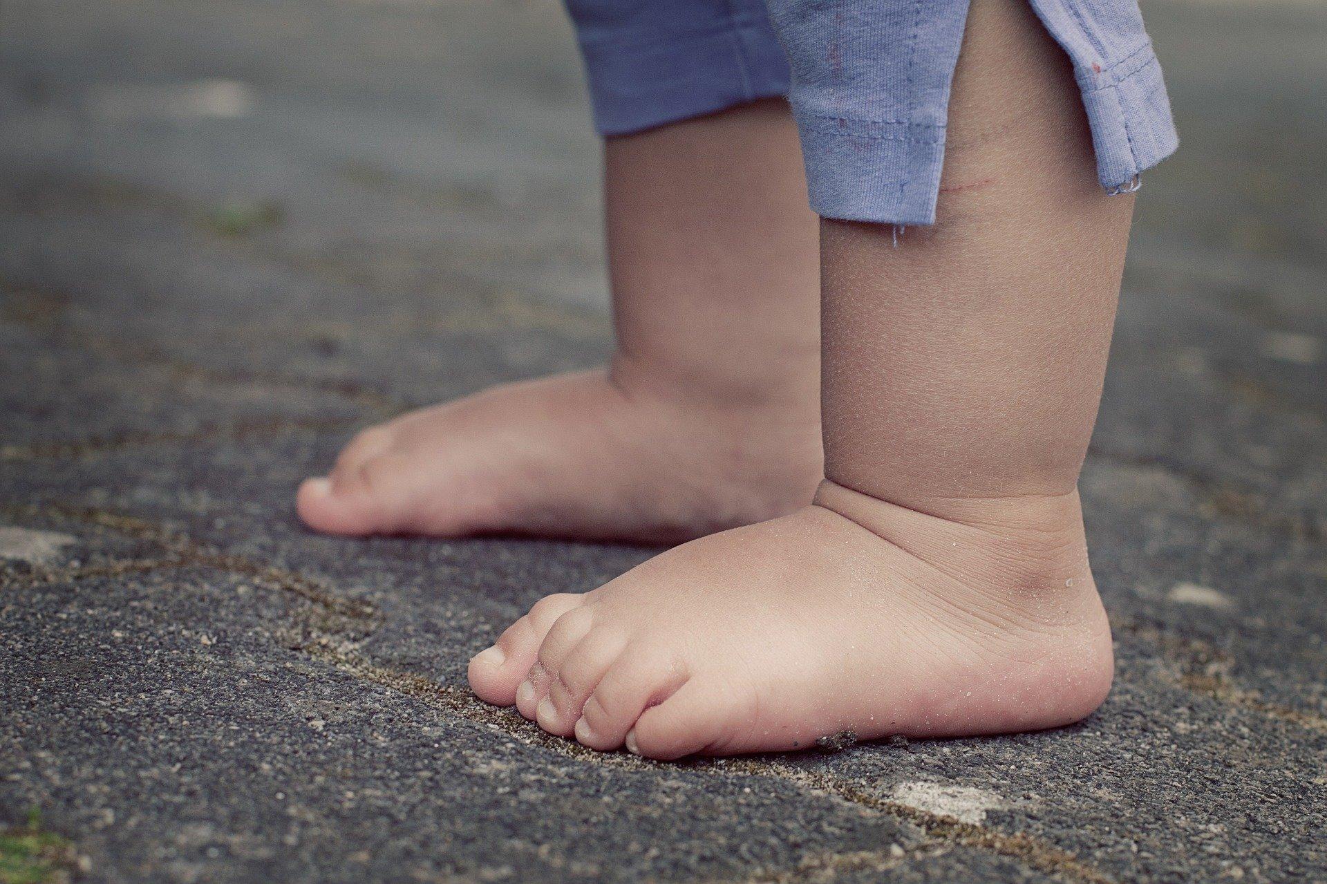 grzybica paznokci i stóp u dziecka