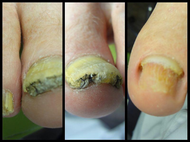 grzybica paznokcia przed i po