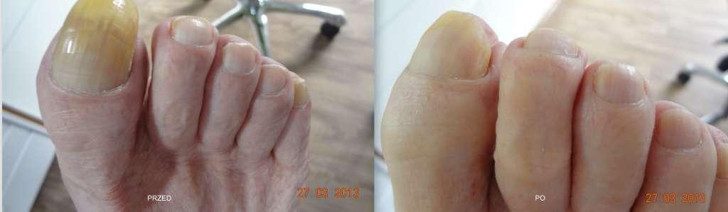 paznokieć pogrubiały / przerośnięty przed i po