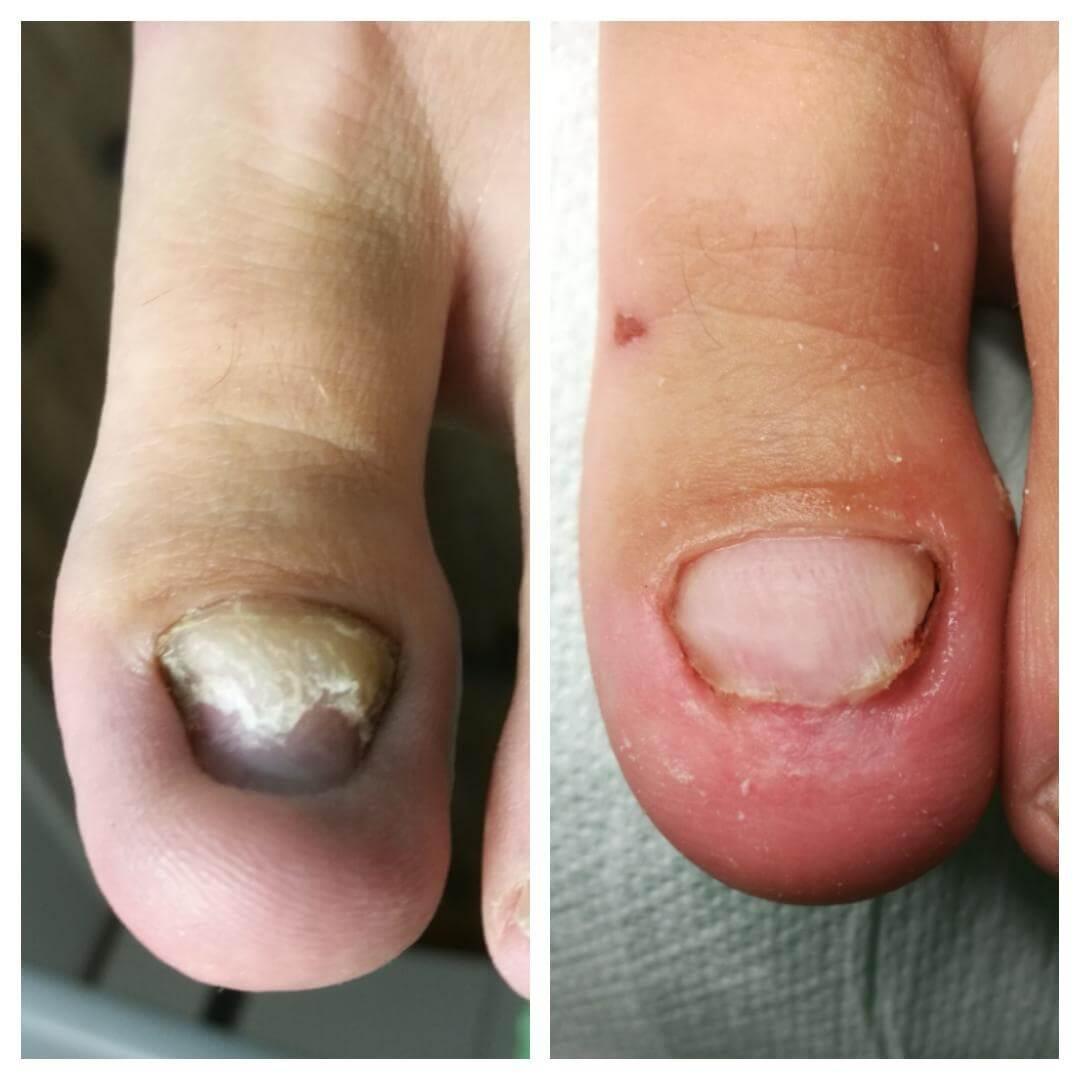 plastyka opuszka przed i w trakcie leczenia
