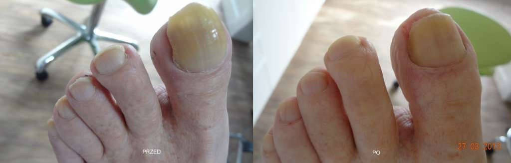 wyleczona stopa cukrzycowa