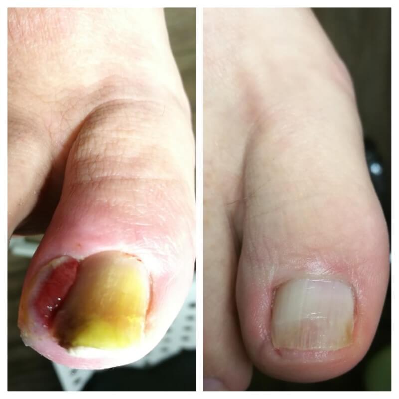 efekt leczenia wrastającego paznokcia