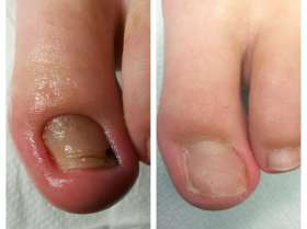 leczenie wrastającego paznokcia przed i po