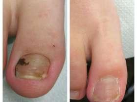 wrastający paznokcie u klienta