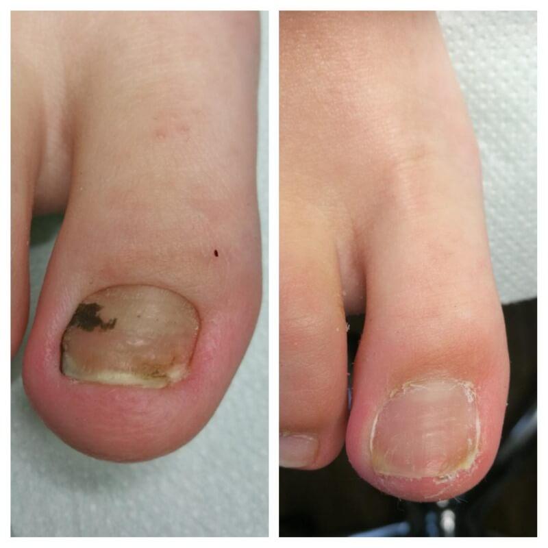 wrastające paznokcie u klienta