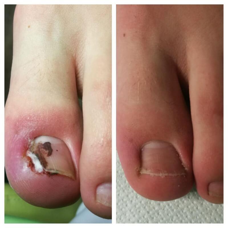 efekt podologicznego leczenia wrastających paznokci