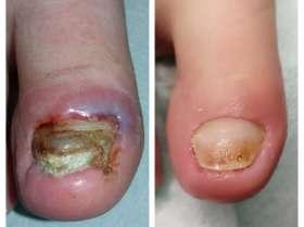 Wrastające paznokcie u stóp