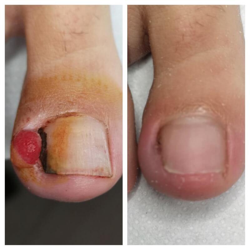 Wrastający paznokieć wraz ze zmianami chorobowymi oraz efekt leczenia
