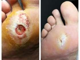 leczenie stopy cukrzycowej przed i po