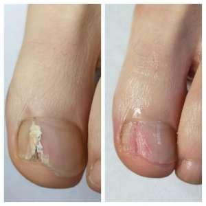 zmiany na paznokciu u stopy wywołane grzybicą