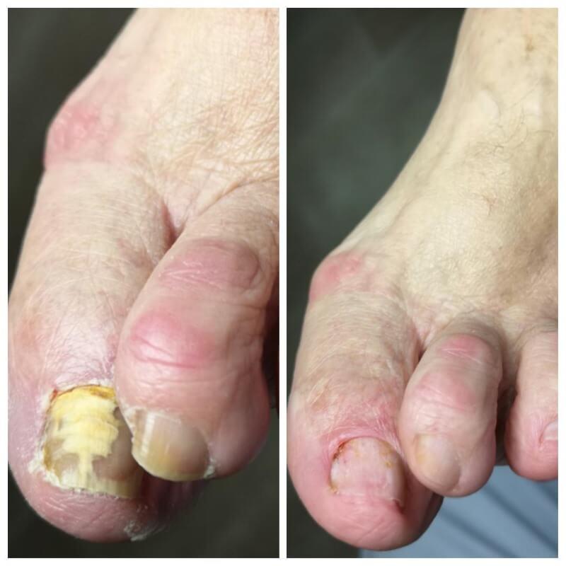grzybica paznokci u klienta