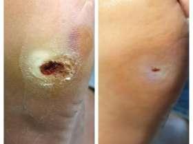 leczenie ran na stopie cukrzycowej przed i po