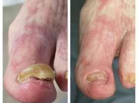 postępy w leczeniu stopy cukrzycowej