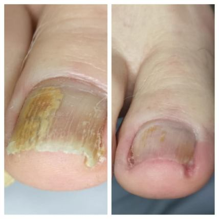 Grzybica paznokci rąk i stóp. Jak się objawia?