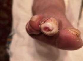 stopa cukrzycowa przed leczeniem