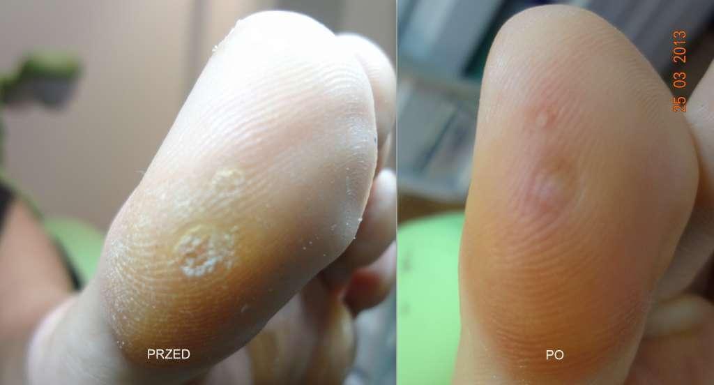 leczenie kurzajek przed i po
