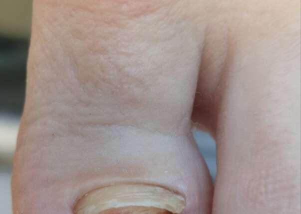 Pierwszy zabieg chirurgiczny, który daje szansę pacjentom z zablokowanym wzrostem paznokci.