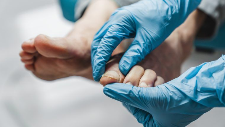 Jak nie przeoczyć objawów świadczących o guzie aparatu paznokciowego?